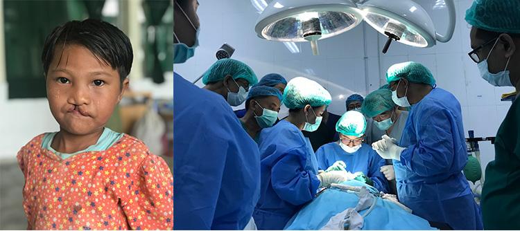 ミャンマー口唇裂・口蓋裂総合治療プロジェクト